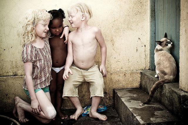 Alexandre Severo - Crianças negras e albinas