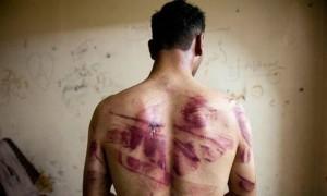 Torturado por agentes dos EUA